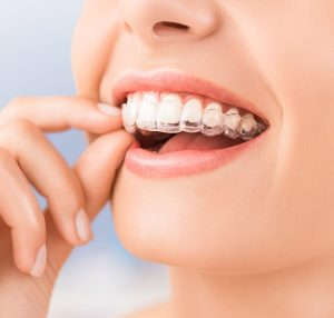 Invisalign new hyde park dental