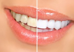 Teeth Whitening new hyde park